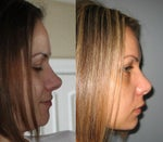 Does nose tip drop after rhinoplasty?