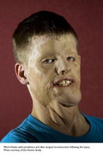 Mitch Hunter face transplant
