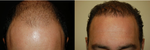NeoGraft: Meet the NKOTB of Hair Transplants