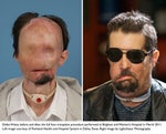 Dallas Wiens full facial transplant