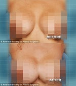 botched breast implants