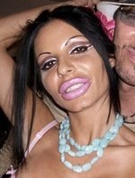 shocking plastic surgery 2011