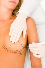 breast implant statistics