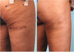 Cellulaze before and after. Photo credit Barry E. DiBernardo, MD