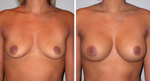 essentials to getting great breast implants