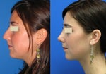 Five Pre-Procedure Rhinoplasty Questions To Ask