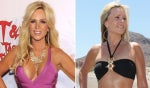 5 Celebrities Who Got Their Breast Implants Removed