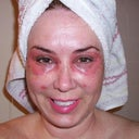 2nd day:  Shower, let water run over face while gently exfoliating dead skin with fingertips.  Ouch! Spot lasering on face too.