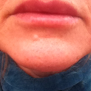 Day 7 - Devastated by size of top lip, she shape & unsure if overfilled or still swollen :(