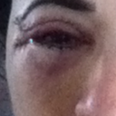 Right eye.  Far worse than the left.  Major scar under this eye that extends beyond my eye.  Flared scars with 'dog ears'  Scar pops up at the end of incision lines.  Make-up cannot cover.