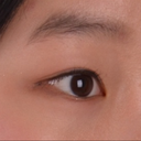 Double Eyelid Surgery Should Be Taken With Forehead & Eyebrow Lift