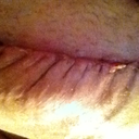 the scar is swollen look how bad it puckers