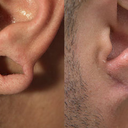 Ear Gauge Repair