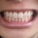 Braces are off. My left upper looks shorter than my right. If my right was taken inwards a bit more maybe I'd be happier.