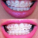 The top photo is day one of the ceramic braces.  The bottom photo is day 15.  So this closes my Invisalign review.  Please read my Ceramic Braces review posted this week:)