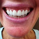First veneers. Too big, too white, too opaque. Placed too close to the bone causing redness, swelling and bleeding