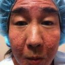 Acne Scarring-Ulthera, Fat Transfer, Mixto, PRP And Stem Cells -3 Sessions