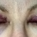 Day after procedure (Day 2) - Eyes closed. Bruising starting to appear under the right eye (on the left in the pic)