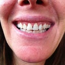 Teeth after crown lengthening surgery at 30 days. The teeth look somewhat misshapen and there are large gaps where the gums were lifted.
