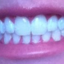 After, no more deep bite and my front teeth are no longer grinding into each other on the inside.