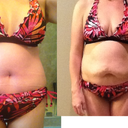 Before and PO day 8 comparison in bikini