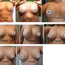 Post BA progression pics to 5 months. Capsular Contracture in left breast