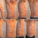 28 days out from Power Assisted Lipo, 13 days out from Smart Lipo.