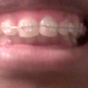 After Braces, they have only been on one month and I already see improvement