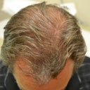53 Year Old Male Before And After 1 Year On Propecia