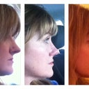 0 - 2 Months - right profile.