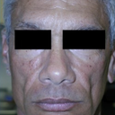 Silicone Microdroplet Therapy For Facial Atrophy