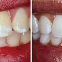 Teeth Whitening With Opalescence