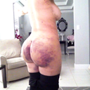 5 days post-op (super swollen w/o garment for 4 days =( very bruised... YUK! but getting better