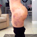 5 days post-op (super swollen w/o garment for 4 days =( Back scoop VERY swollen. Triangle was only in place w garment for 24 hrs.