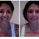 Another comparison. After shot is 1.5 months after surgery