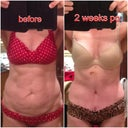 I love comparison pictures- good reminder of what was-2 weeks po