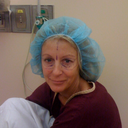 Pre-op, eyes marked with marker to show where laser resurfacing should be done