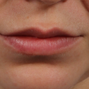 Removal Of Lip Nevus