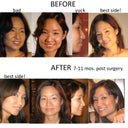 pre and post-surgery rhinoplasty pics