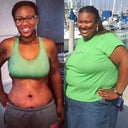 Comparison picture. I lost 180 pounds, naturally then I got my surgery. In this picture I am 6 weeks post-surgery!!!