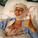 I am going to post the pics of my Face lift here also just to let folks see what it was like for me. This pic is the day of my FL. home from the operation. I also had a breast implant exchange done with my FL to remove 25 year old implants that were ruptured. This was a long recovery. I would have to honestly say I did not feel like myself for a good 4-5 months after the operations. A lot of down time. Im glad I did it, I would do it all again, but know this is MAJOR SURGERY. Not to be taken lightly. There is really no pain, just discomfort and a lot of frustration with the ups and downs of the healing process. Good luck to all of you out there on your cosmetic adventures :) FYI: The total for the FL,neck lift, brow lift, fat transfer, breast reconstruction, botox, filler and Fraxsal has come to a whopping $35,000.00 . Yes, CRAZY I know. (This was a new car, a VERY nice new car....But I don't care about cars. So this is my new ride:) Also, have people who love and support you in this quest. You'll need them to be there for you and be understanding as you transform yourself. I have been married for 25 years and have been a stay at home mom of 5 great kids for 23 of those, my family was amazing and really helped me through this journey. I am blessed.