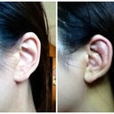 Left: Untouched ear; Right: Ear used for cartilage transfer to nose, 6 days post op.