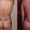43 Year Old Female With Liposuction And Fat Grafting