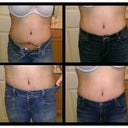 Post Op Day 52 (almost 2 months po)