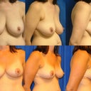 Before and 6 months post of my breasts