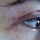 Scar under right eye.