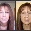 2006 - Left) Before Lip Lift...Right) Two days after Lip Lift w/ stitches...Very Swollen.