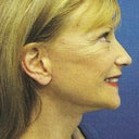 Less waddle but no ear lobes- cannnot wear earring because the piercing is no longer facing forward.