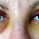 Day 4 Open. Bruising under right eye starting to yellow, still quite swollen. Under left eye never turned into a shiner - going straight to yellow.