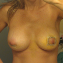 "Ok, here's the ""Franken-boobs"". Sorry if the scars make you squeamish, like me.  This is day 5. You can see the difference in shape & size. My right breast is the one with the lift and the 350cc (since this is a  mirror shot, it's also the one on the right when looking at the photo), left has 380 and look fuller and lower to me."